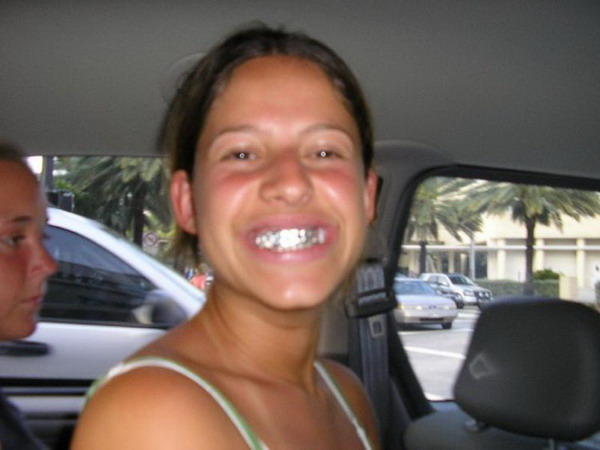 фото серебряные зубы